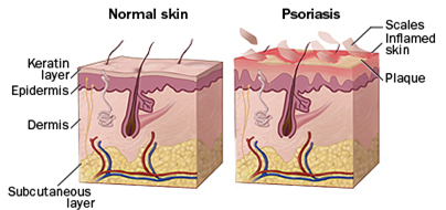 Treat psoriasis - Diagram illustrating difference between normal and affected skin
