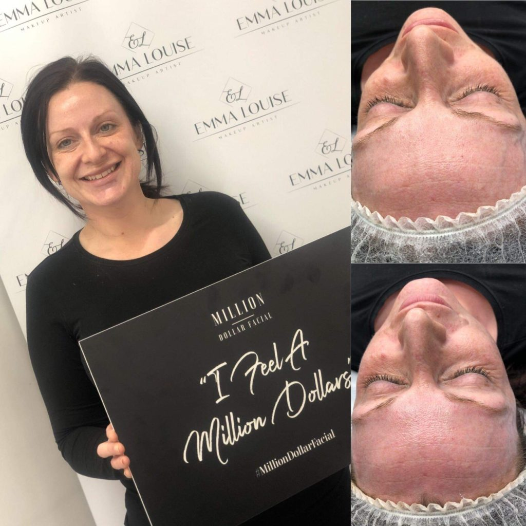 Million Dollar Facial with Emma Louise